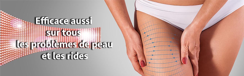 photomodulation-cefficace-pour-les-problèmes-de-peau.jpg